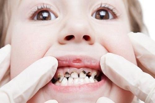 Có nên nhổ răng sâu cho trẻ
