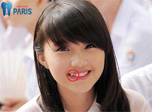Có răng khểnh 1 bên
