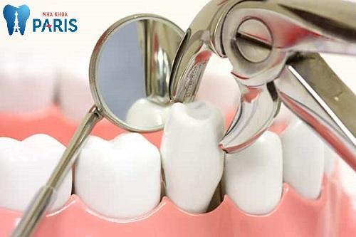Đánh răng bị tụt lợi phải làm sao