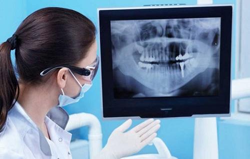 hình ảnh chụp x quang răng hàm mặt