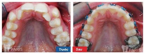 Hình ảnh nhổ răng khểnh
