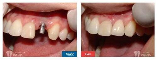 Hình ảnh nhổ răng nanh