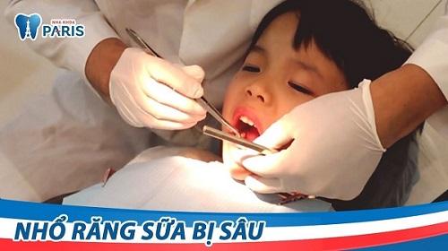 Hình ảnh nhổ răng sữa cho trẻ