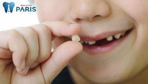 hình ảnh nhổ răng sữa
