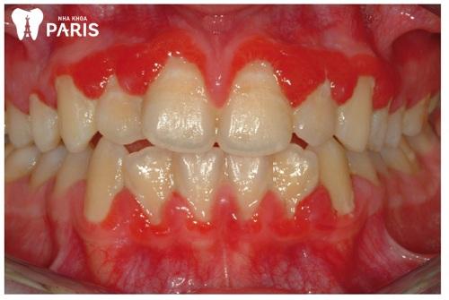 Hình ảnh viêm nướu răng bị sưng