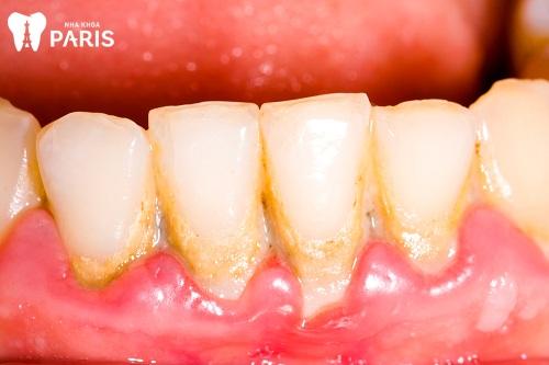 Hình ảnh viêm nướu răng ở trẻ em