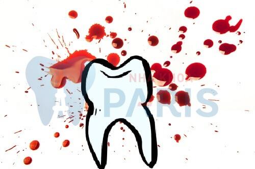 Nằm mơ thấy nhổ răng chảy máu đánh con gì