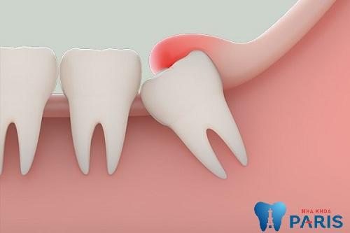 Nắn chỉnh răng mọc lệch vào trong