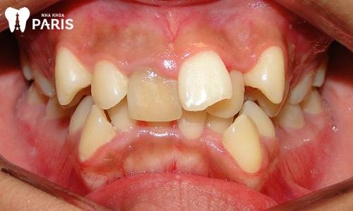 Người có 2 răng khểnh hàm dưới