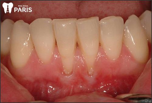 Nguyên nhân niềng răng bị tụt lợi phải làm sao