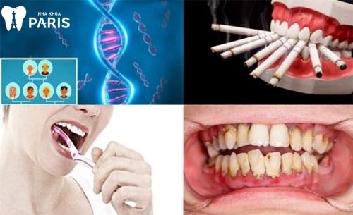 Nguyên nhân và cách trị tụt nướu răng tại nhà
