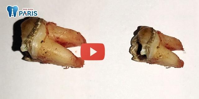 Nhổ răng cùng có nguy hiểm không