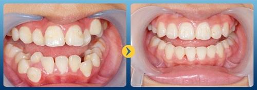 nhổ răng dư hàm trên