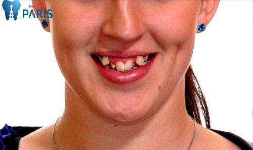 Nhổ răng khểnh là gì
