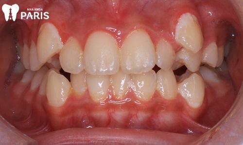Nhổ răng mọc lệch hàm trên