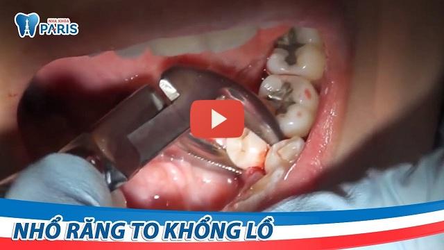 Nhổ răng thừa có nguy hiểm không