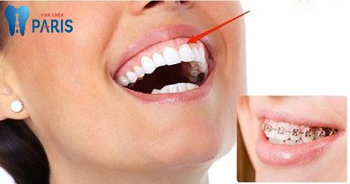 Răng bị tụt lợi chân răng phải làm sao