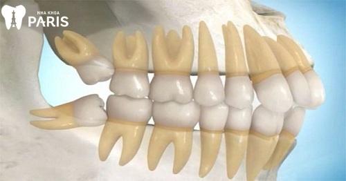 răng cùng hàm dưới