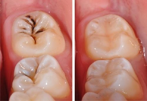 răng hàm bị sâu có nên nhổ đi không