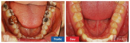 răng hàm bị sâu có nên nhổ không