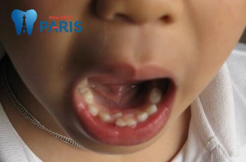 răng mọc thừa ở hàm dưới