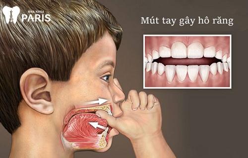 tại sao răng mọc lệch lạc