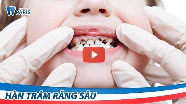 cách chữa bệnh sâu răng ở trẻ em