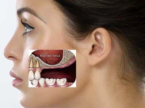 xoang hàm đau răng trong cùng phải làm sao