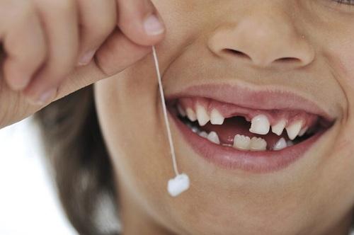 bảng giá nhổ răng sữa