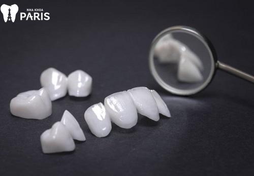 bảng giá răng sứ cercon xt