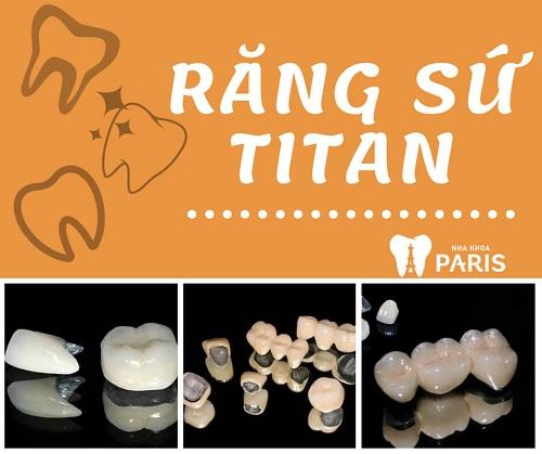 Bảng giá răng sứ titan 2018