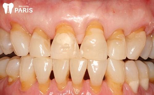 bệnh tiêu xương chân răng là gì
