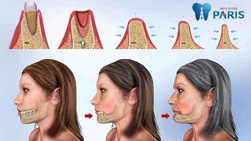 Bệnh tiêu xương hàm có nguy hiểm không