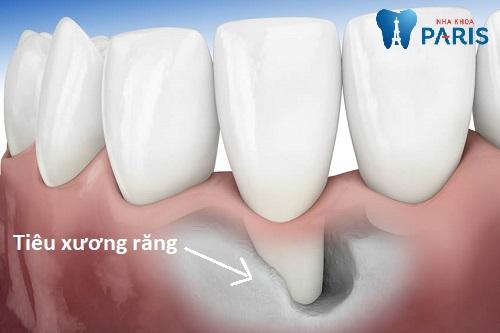 Bệnh tiêu xương răng là gì