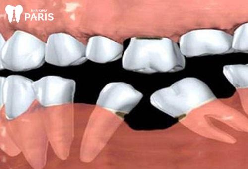 Bị tiêu xương hàm có nguy hiểm không
