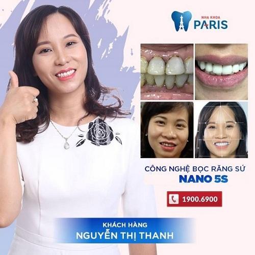 Bọc răng sứ cercon giá bao nhiêu tiền
