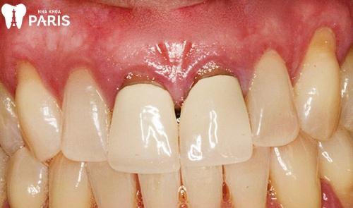 Bọc răng sứ Titan giá bao nhiêu tiền