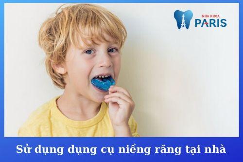 cách chữa răng bị vẩu