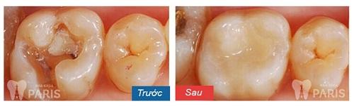 Cách chữa sâu răng vĩnh viễn