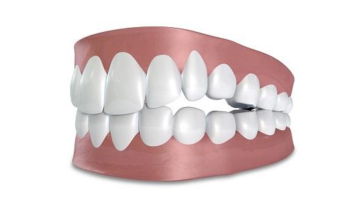 cách đánh số răng người bình thường