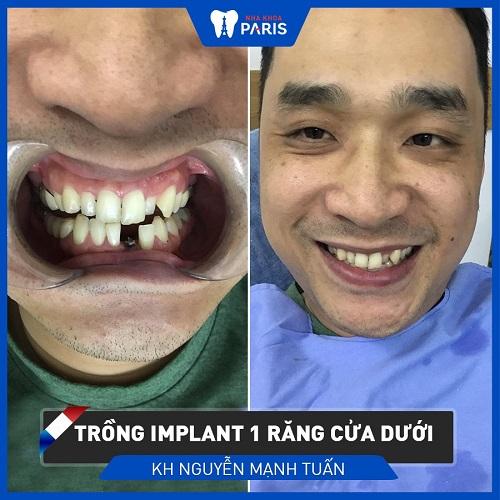 Cách điều trị bệnh tiêu xương hàm răng