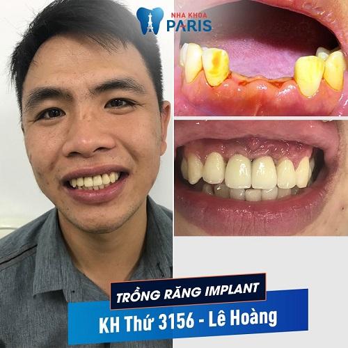 Cách điều trị tiêu xương ổ răng