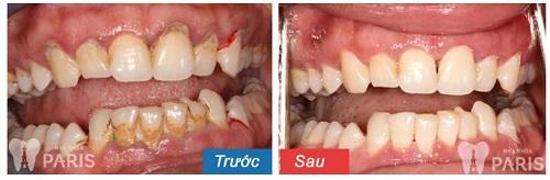 Cách điều trị tiêu xương răng