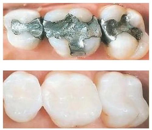 Cách trị sâu răng vĩnh viễn