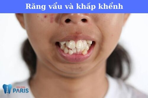 Chữa răng vẩu hàm trên