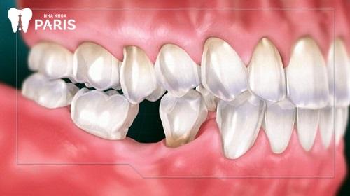 dấu hiệu tiêu xương răng là gì