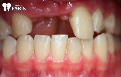 điều trị tiêu xương răng cửa
