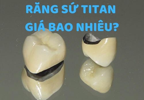 Giá bọc răng sứ titan bao nhiêu tiền