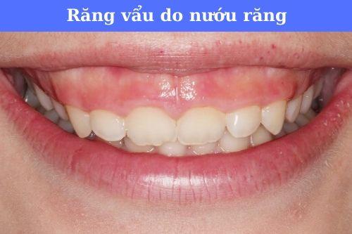 Hàm răng vẩu là gì