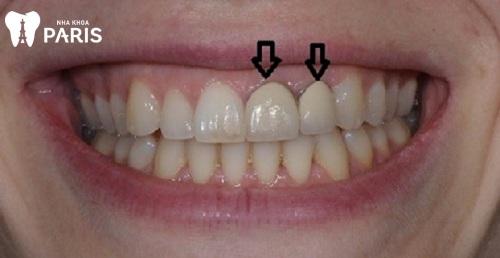 hình ảnh bọc răng sứ titan